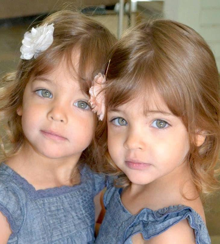 İkizlerin Erken Gelişi