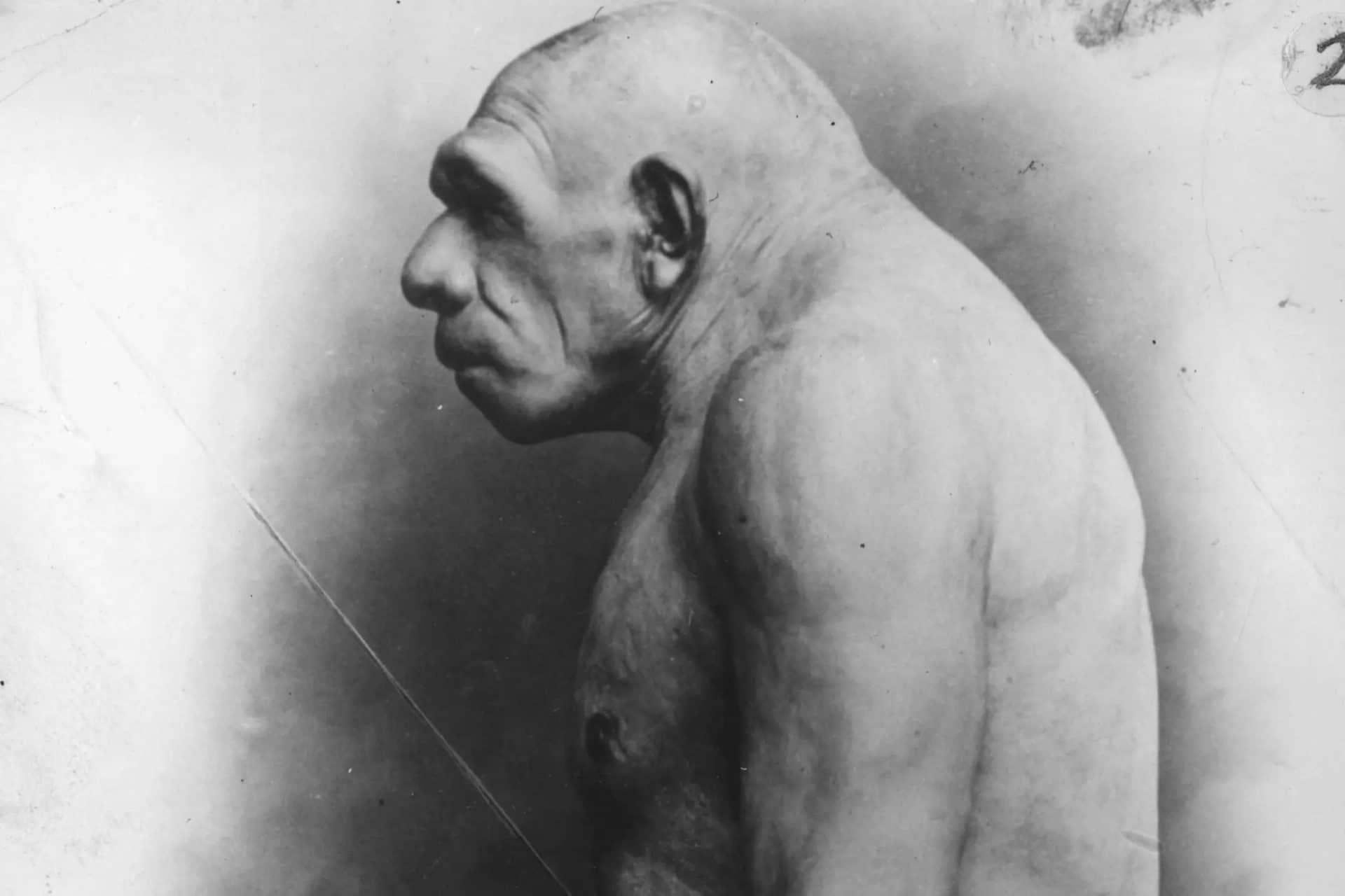 Fóssil De Homem Neandertal