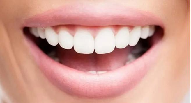 Zahnfleischentzündungen