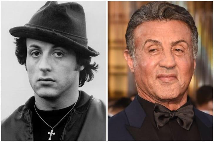 Sylvester Stallone – Lifts Faciais e Botox