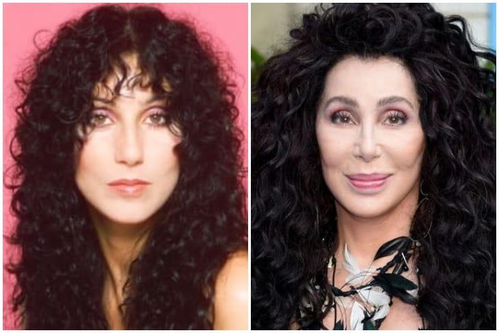 Cher – Cirurgia Estética