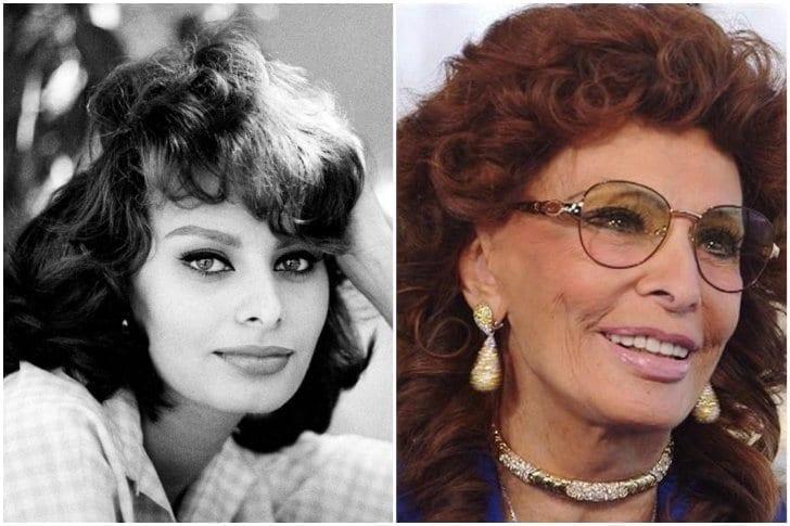 Sophia Loren– Rinoplastia