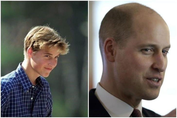 Prince William – E A Calvície