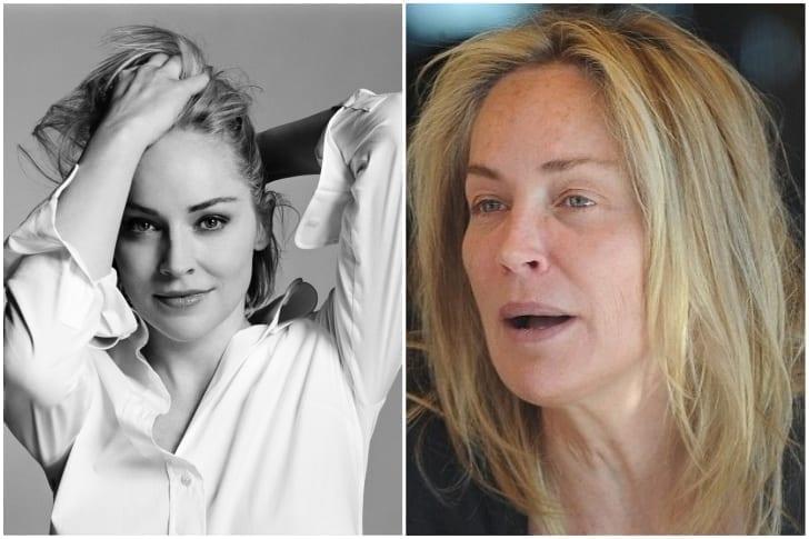 Sharon Stone– Derrame