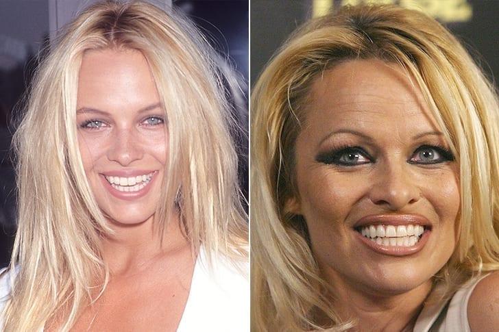 Pamela Anderson –E Os Anos De Dependência