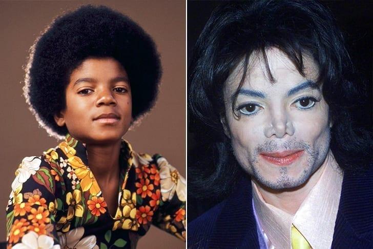 Michael Jackson – Cirurgias Plásticas Em Excesso