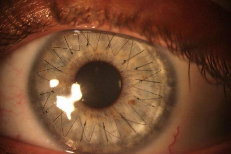 Your Eyeball After A Cornea Transplant