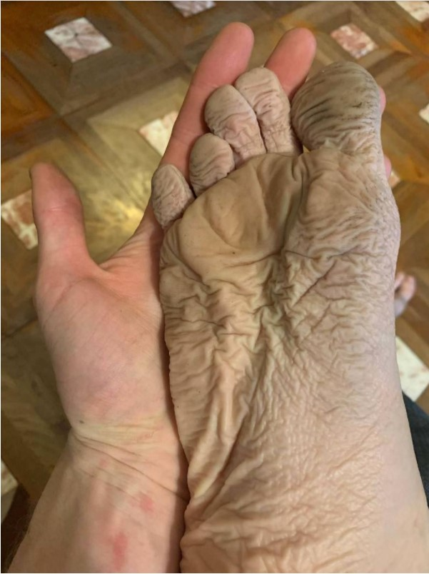 A Soaked Foot