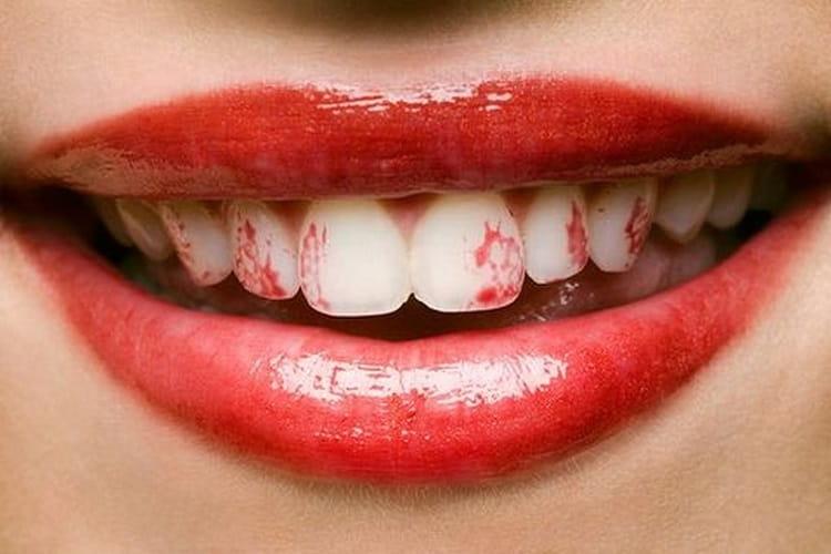 Proteja Seus Dentes