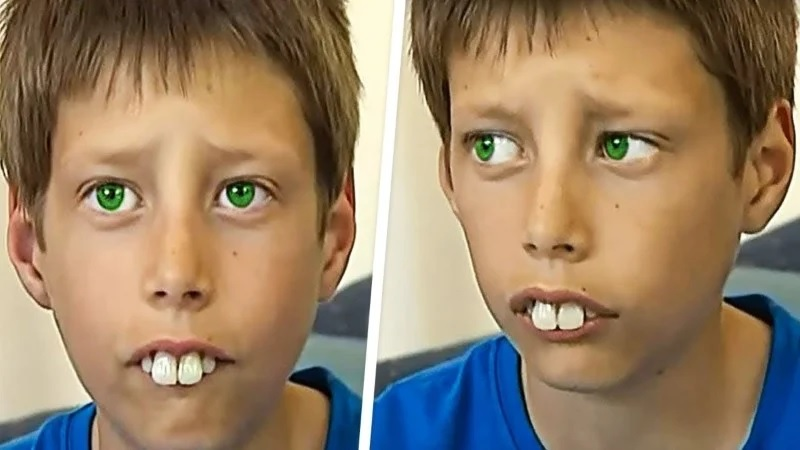 """Things Have Completely Changed A Decade Later, After Everyone Called Him """"Rabbit Boy"""""""