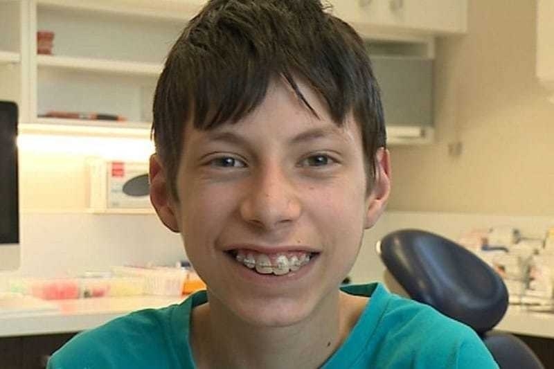 His Last Day With The Braces