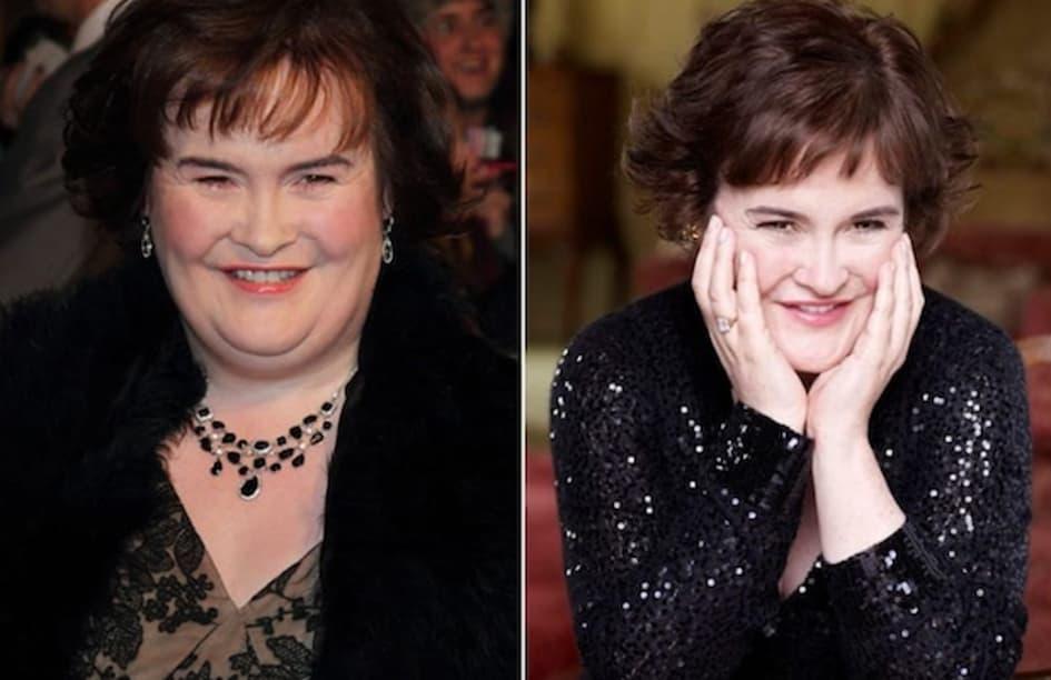 Susan Boyle A Perdu 23 Kilos Pour Lutter Contre Un Diabète De Type 2