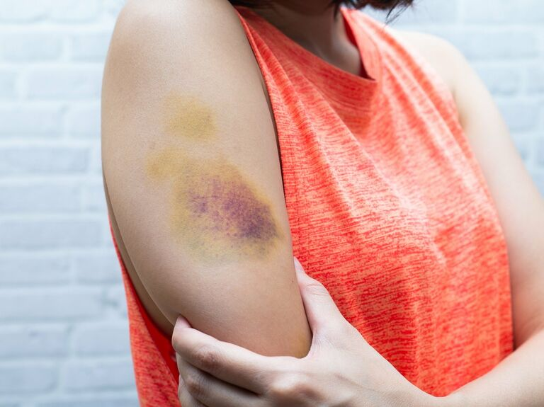How To Heal Bruises Quickly