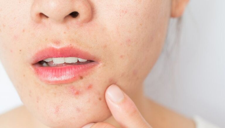 Your Skin Might React Badly To It