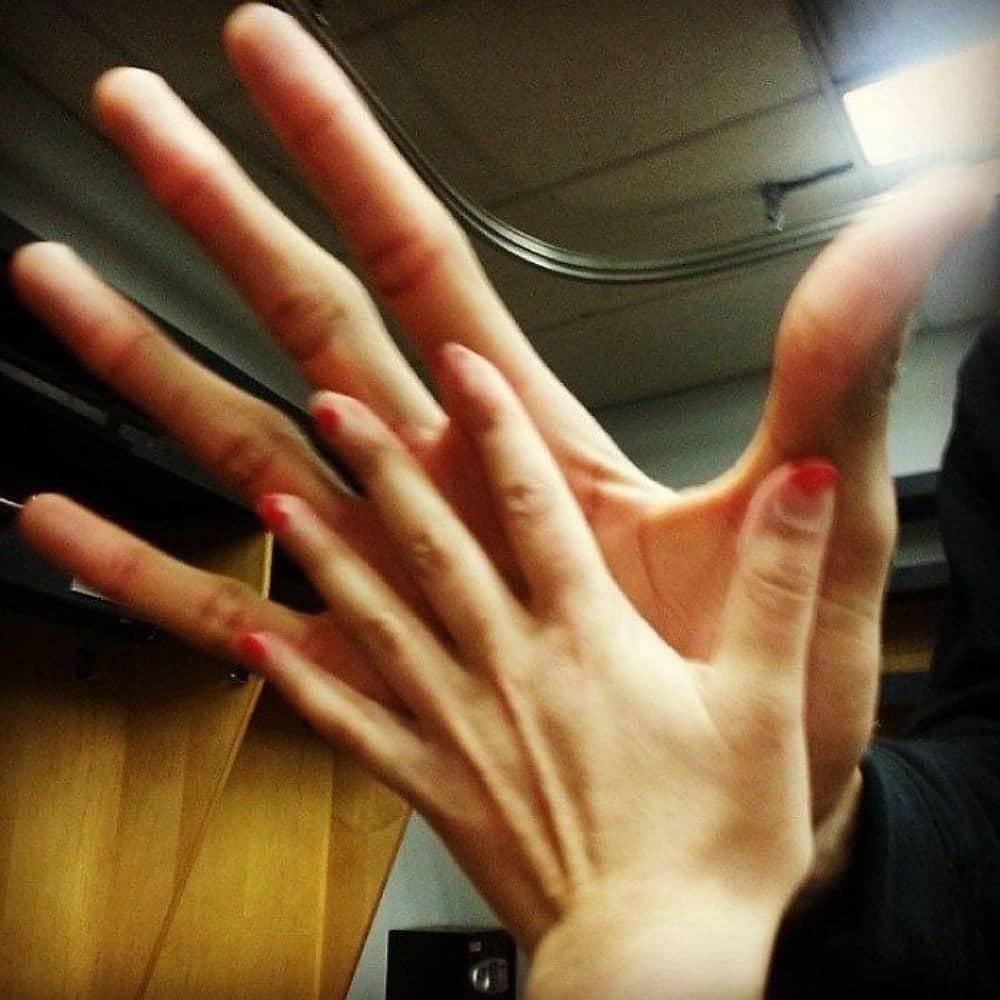 The Hand Of NBA Player Vs. Average Hand