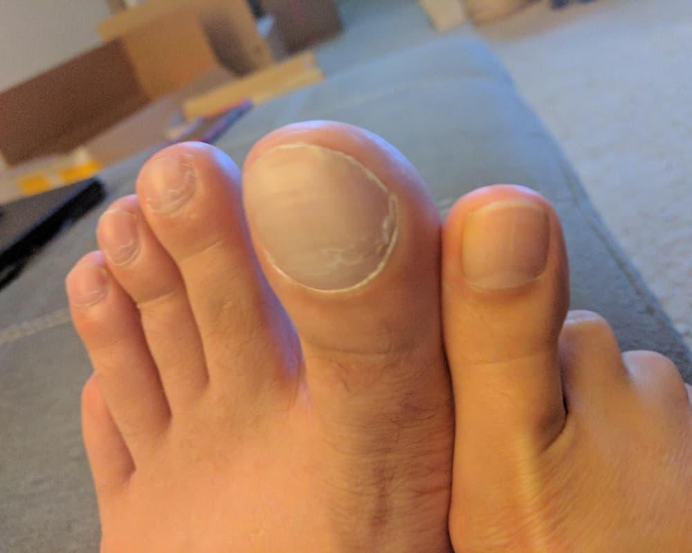 Husband's Big Toe Vs. Wife's Big Toe