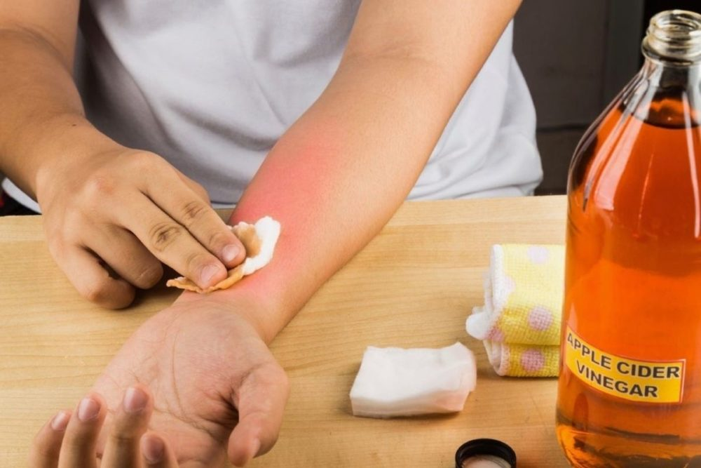 Soothe Your Painful Sunburns