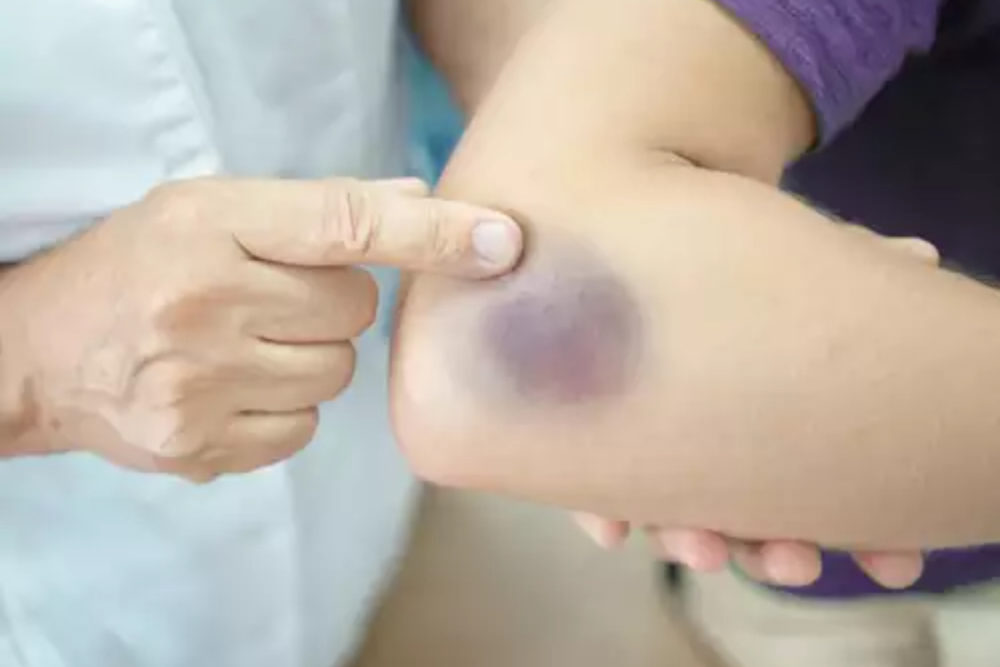 Speed Up The Healing Process Of Bruises